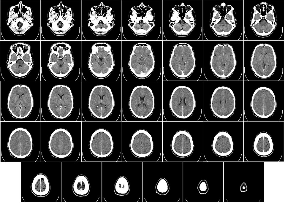 Brain scan math study reveals numeracy is not always linked to our